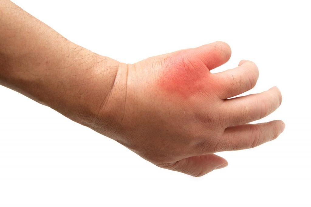 虫に刺されて腫れた手